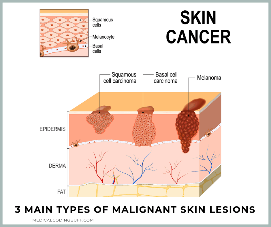 diagram of 3 main types of malignant skin lesions including squamous and basal cell carcinoma and melanoma