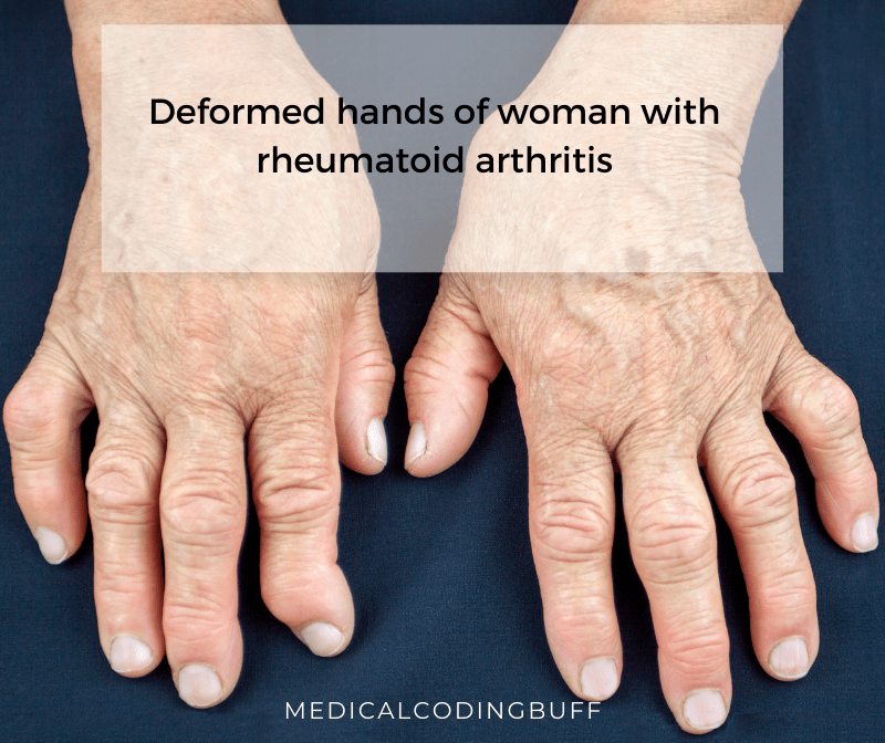 Rheumatoid Arthritis In Icd 10 Cm It S All In The Joints Medical Coding Buff