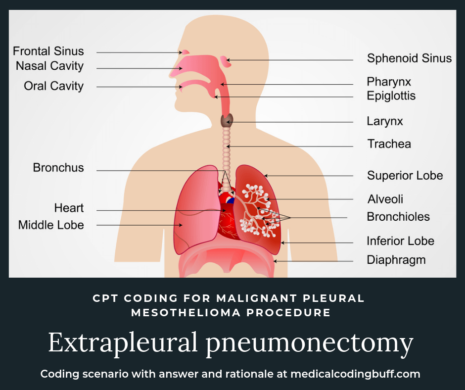 diagram of the respiratory system and the sites affected in an extrapleural pneumonectomy