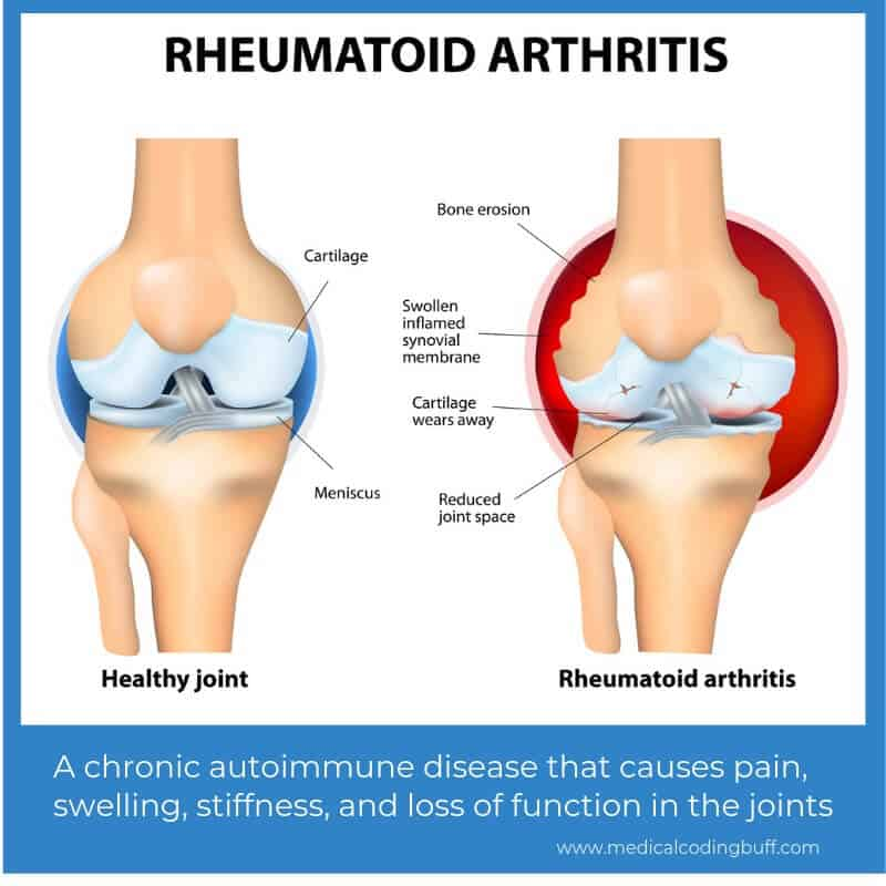 A healthy joint and a joint with rheumatoid arthritis