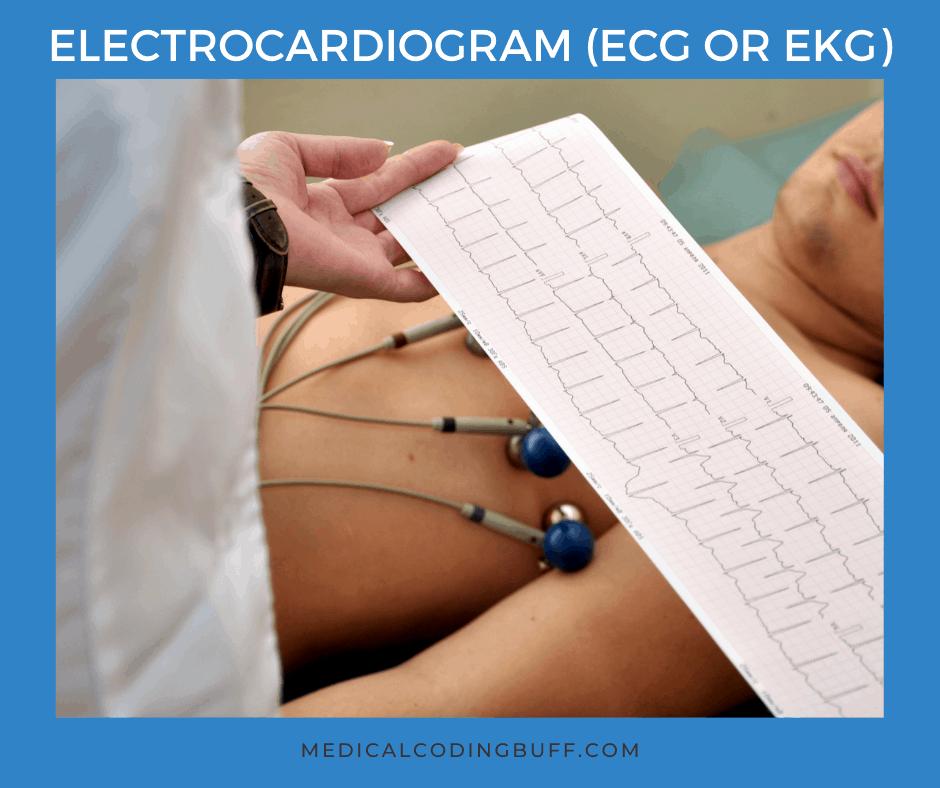 Electrocardiogram to help diagnose myocardial infarction