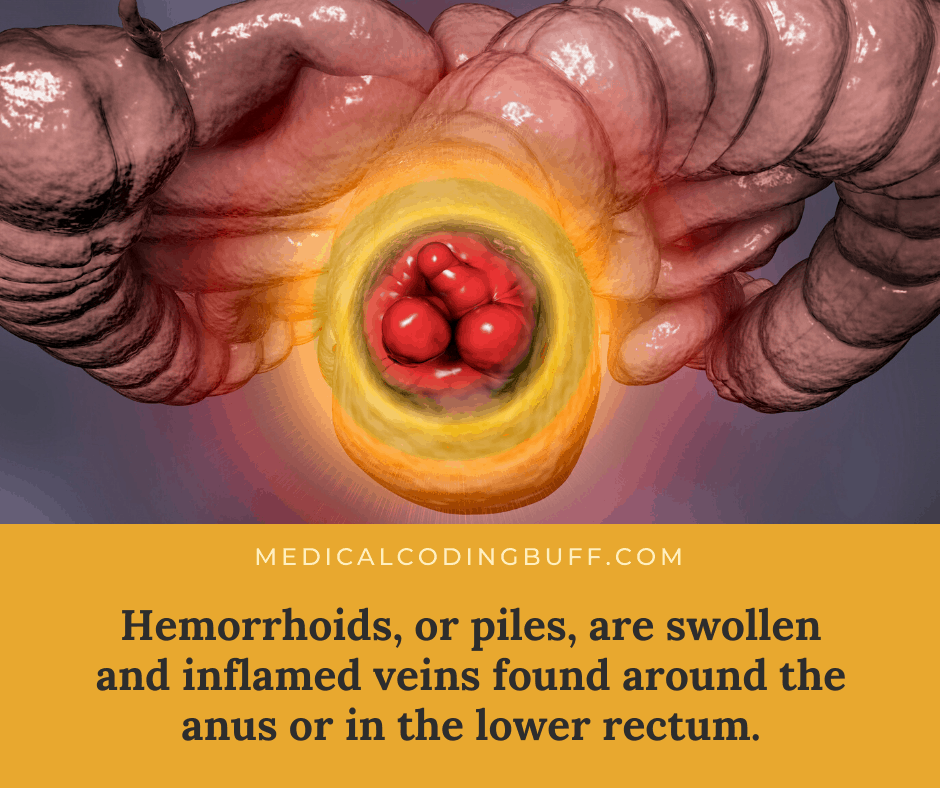 ICD-10-CM coding for hemorrhoids and what they are