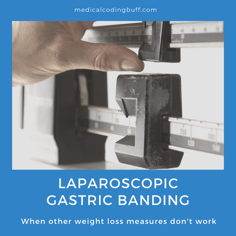 CPT coding of Laparoscopic gastric banding procedure after weight loss doesn't work