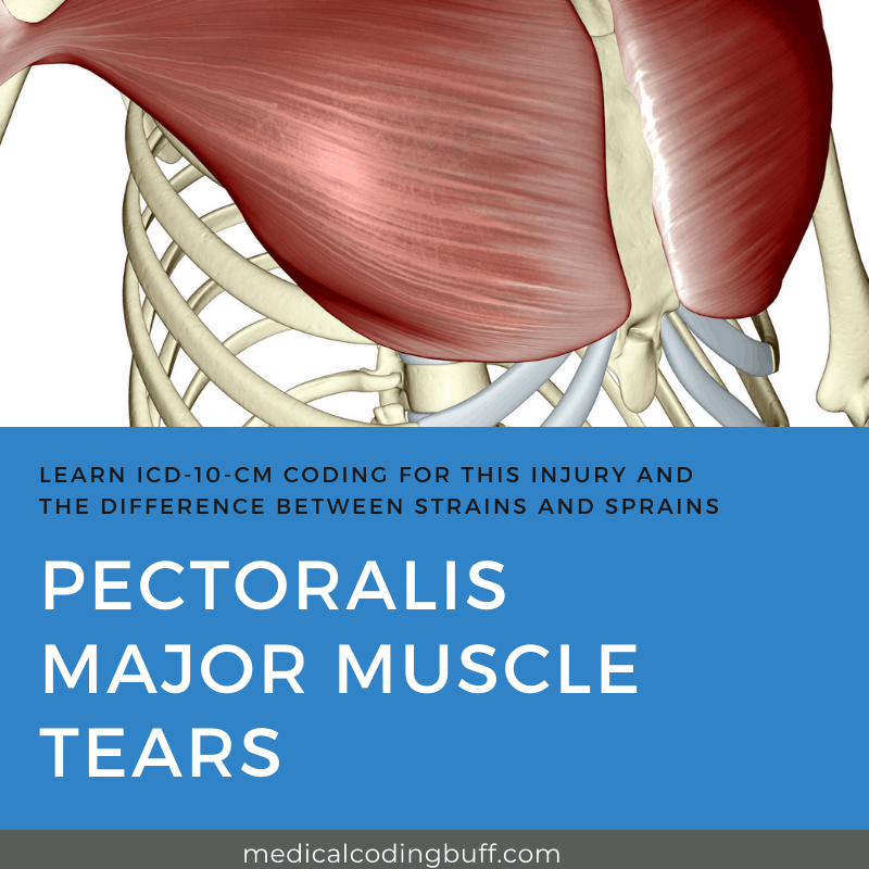 coding for pectoralis major muscle tears