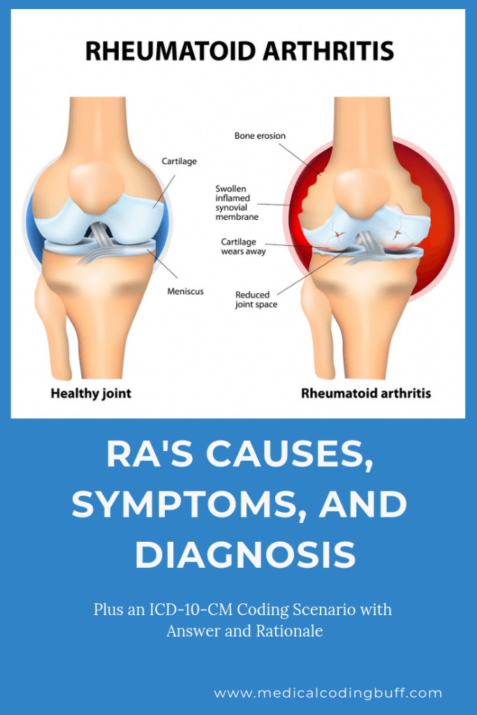 RA's causes, symptoms, and diagnosis
