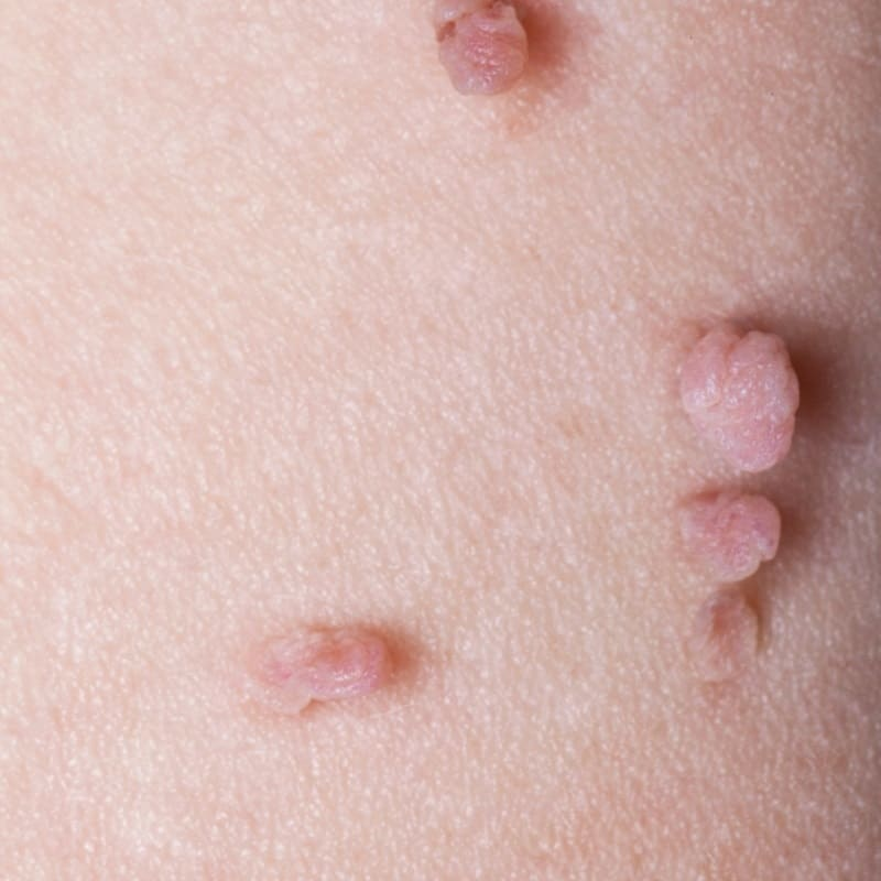 skin tags and how to code for skin tags and their removal